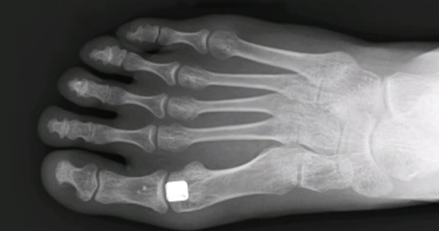 Cartiva Toe Implant x-ray