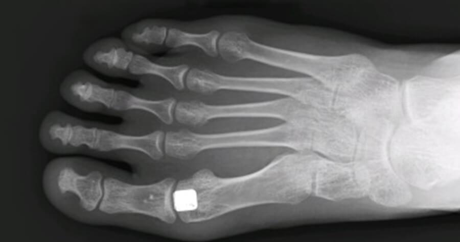 Cartiva Toe Implant x-ray