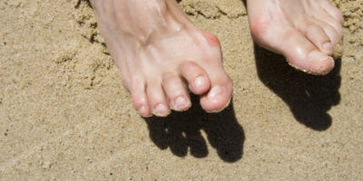 Deformed Toes Treatment in Suffolk