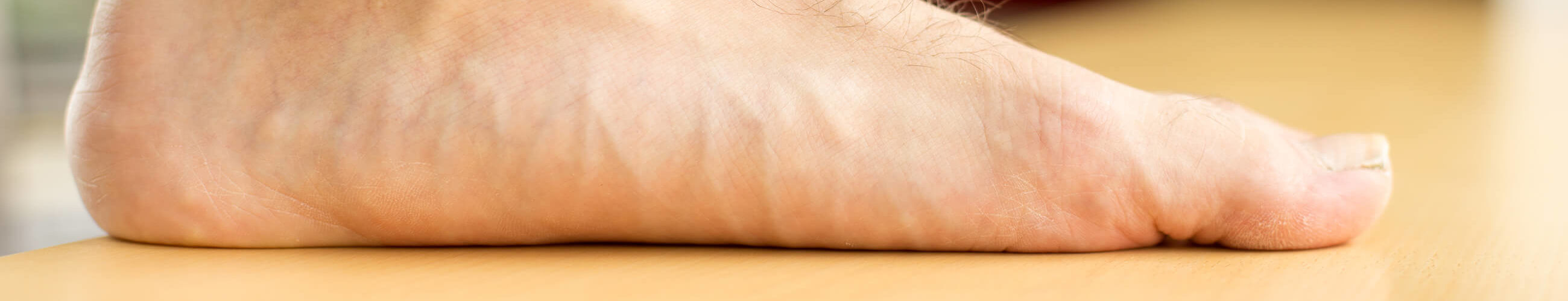 Flat feet Treatment in Suffolk
