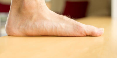 Flat feet Treatment in Suffolk